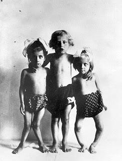 ילדים הלוקים ברככת. במשך 200 שנה, מדענים ביצעו שלל ניסויים על אוכלוסיות מוחלשות בחברה (תינוקות, נכים, יתומים, נשים, שחורים וכו'). המאמר מציג סקירה היסטורית חלקית של אותם הניסויים, הכוללת את הרטוריקה ששימשה את המדענים להצדקת הניסויים, ואת ההתנגדות למוסד זה.